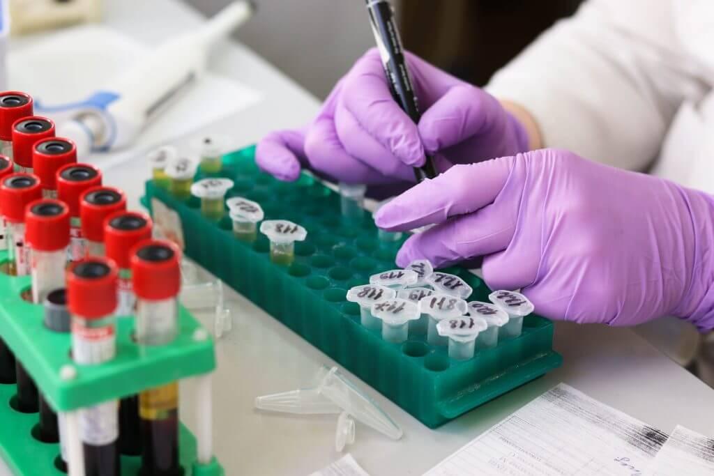 Koje su najbolje elektroničke laboratorijske bilježnice (ELN)?